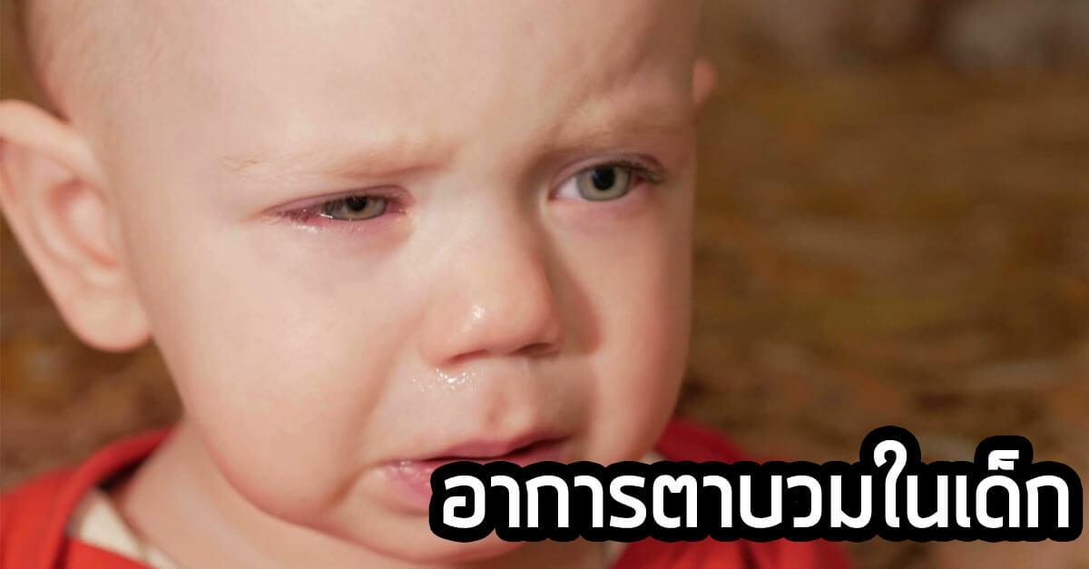 สาเหตุ-และวิธีรักษา-อาการตา-บวมในเด็ก